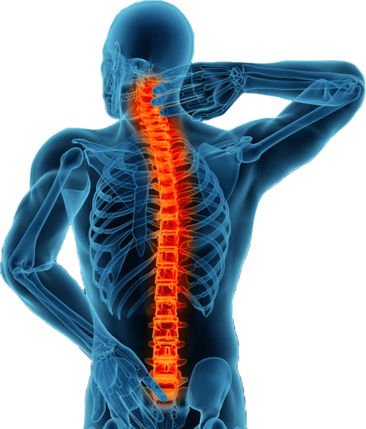 Drawing of man grabbing neck, expressing back pain with spine highlighted